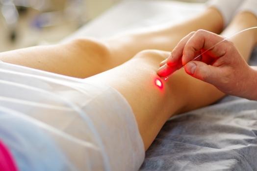 Tratamiento de las telangiectasias