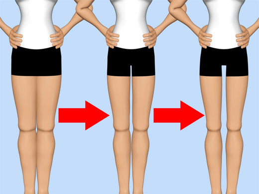 thigh gap